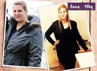 Anna im vorher-nachher Vergleich