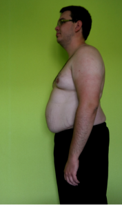 BodyChanger Xaver vor seiner Gewichtsabnahme