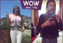 Agnes im Vorher-Nachher-Vergleich